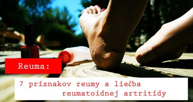 reuma
