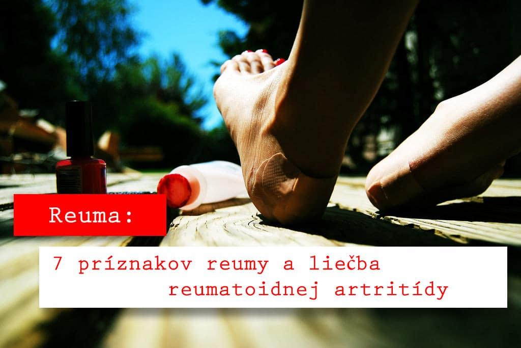 b0dd45419 Reuma, 5 príznakov reumy a liečba reumatoidnej artritídy | Candyman.sk