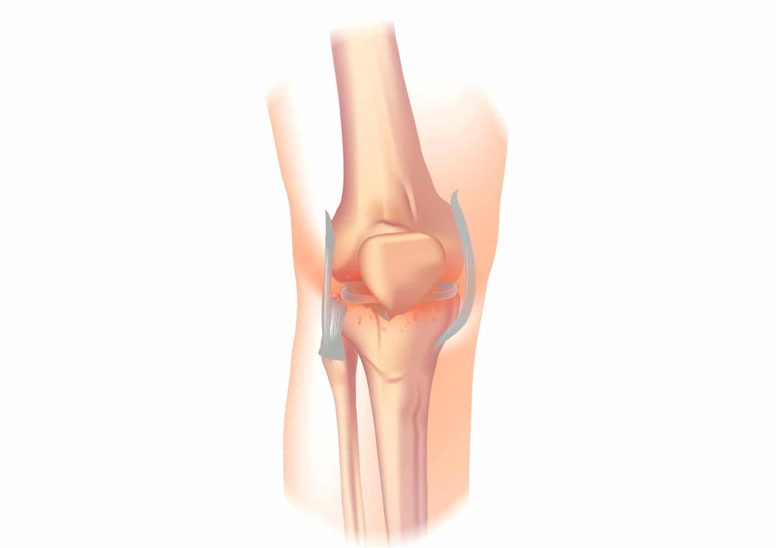 Artróza kolena